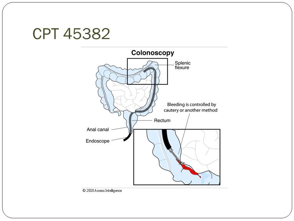 CPT 45382