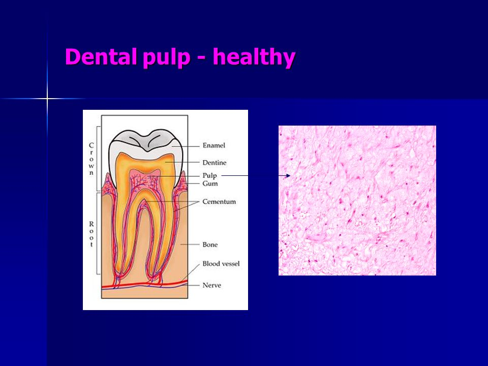 Contraindications for endodontic therapy Dental reasons: Dental reasons: Pulpless teeth are not salvageable if there are associated periapical and periodontal lesions Pulpless teeth are not salvageable if there are associated periapical and periodontal lesions Local reasons: Local reasons: the periapical lesion is an apical cyst the periapical lesion is an apical cyst the tooth is badly broken down by caries the tooth is badly broken down by caries the involved tooth is badly fractured the involved tooth is badly fractured the involved tooth has a mechanical root perforation the involved tooth has a mechanical root perforation the involved tooth has perforating internal or external root resorption the involved tooth has perforating internal or external root resorption the involved tooth is wholly or partially luxated the involved tooth is wholly or partially luxated