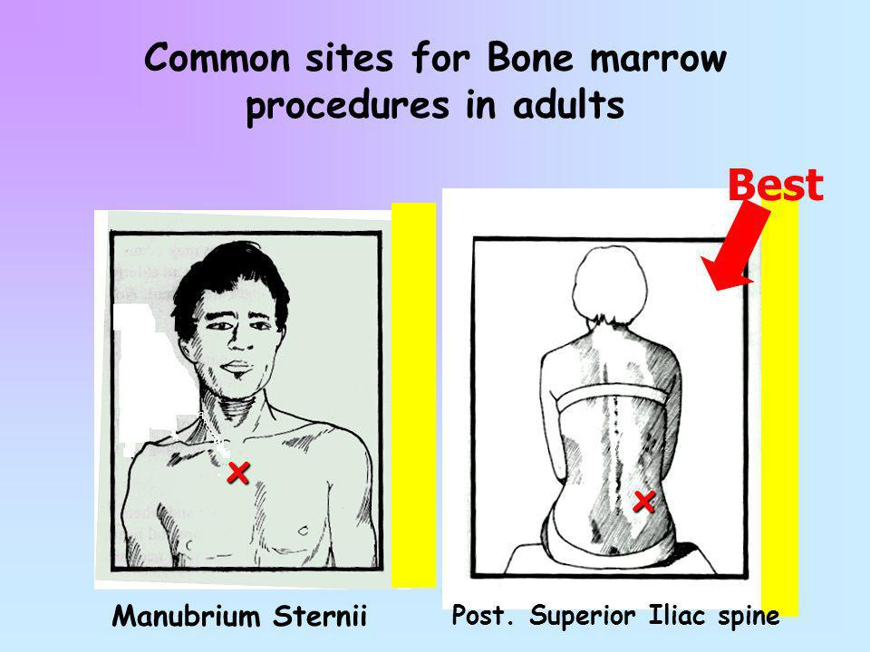 Common sites for Bone marrow procedures in adults x x Manubrium Sternii Post. Superior Iliac spine Best