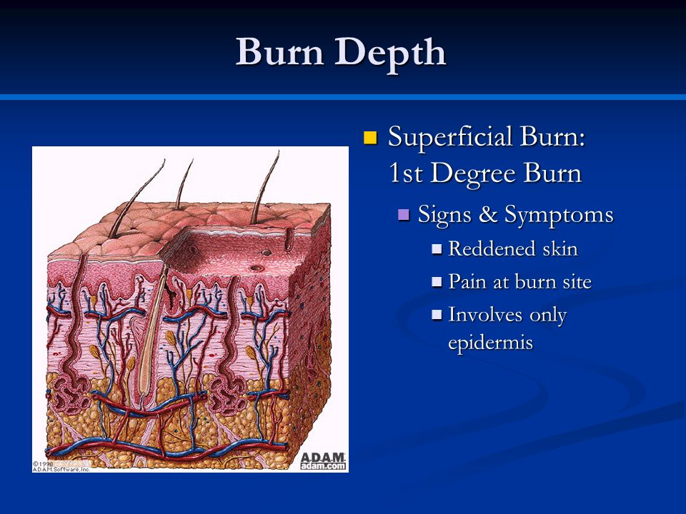 Burn Depth Superficial Burn: 1st Degree Burn Superficial Burn: 1st Degree Burn Signs & Symptoms Signs & Symptoms Reddened skin Reddened skin Pain at b