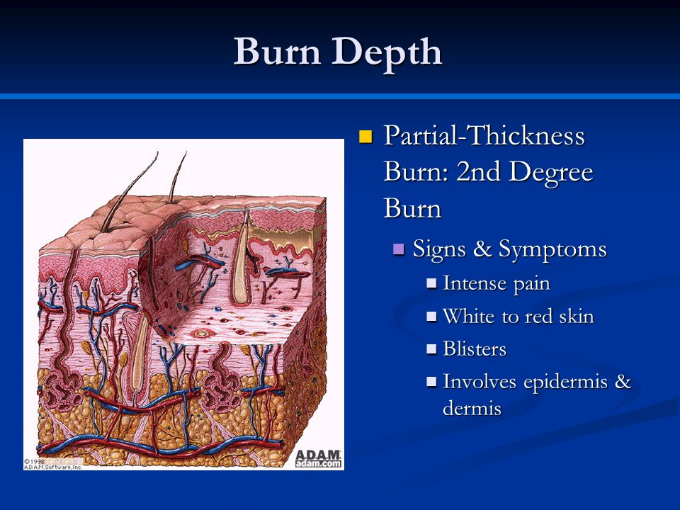 Burn Depth Partial-Thickness Burn: 2nd Degree Burn Partial-Thickness Burn: 2nd Degree Burn Signs & Symptoms Signs & Symptoms Intense pain Intense pain