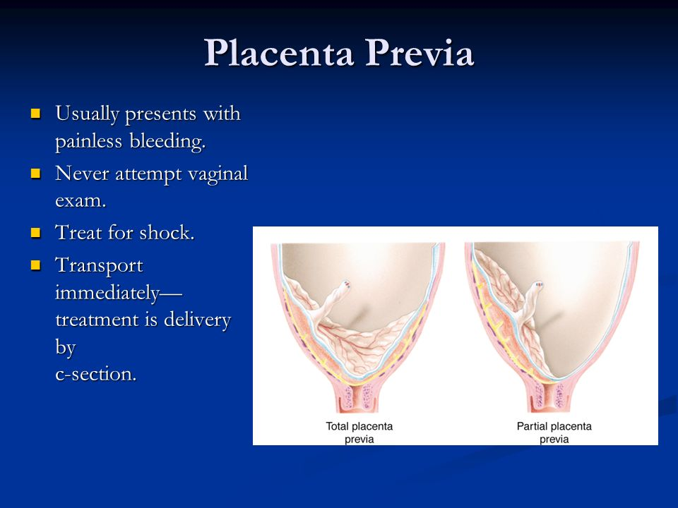Placenta Previa Usually presents with painless bleeding. Usually presents with painless bleeding. Never attempt vaginal exam. Never attempt vaginal ex