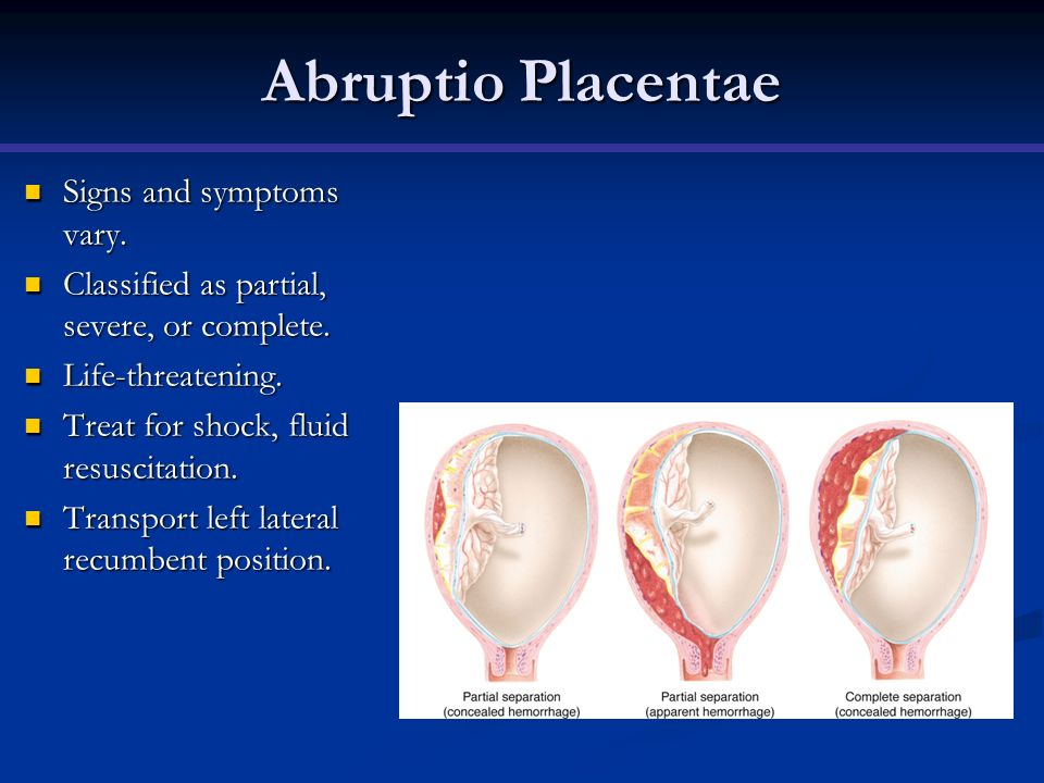 Abruptio Placentae Signs and symptoms vary. Signs and symptoms vary. Classified as partial, severe, or complete. Classified as partial, severe, or com