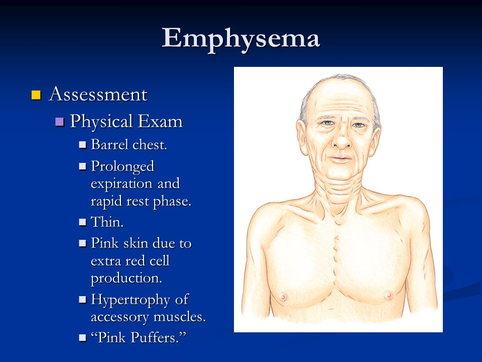 Emphysema Assessment Assessment Physical Exam Physical Exam Barrel chest. Barrel chest. Prolonged expiration and rapid rest phase. Prolonged expiratio
