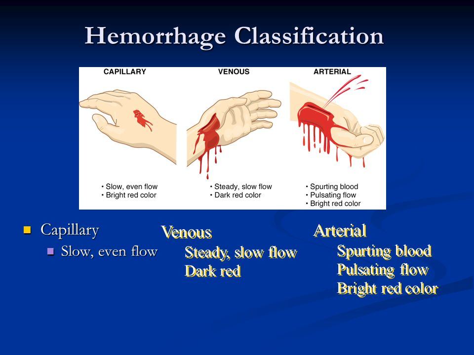 Hemorrhage Classification Capillary Capillary Slow, even flow Slow, even flow Arterial Spurting blood Pulsating flow Bright red color Arterial Spurtin