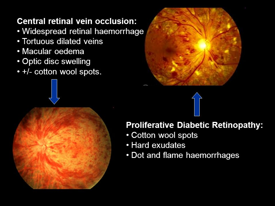 Proliferative Diabetic Retinopathy: Cotton wool spots Hard exudates Dot and flame haemorrhages Central retinal vein occlusion: Widespread retinal haem