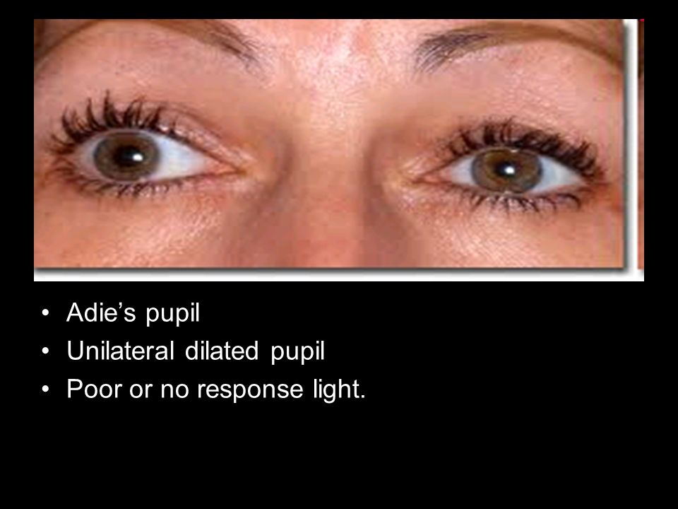 Adies pupil Unilateral dilated pupil Poor or no response light.