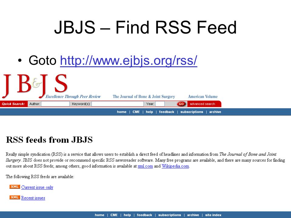 JBJS – Find RSS Feed Goto http://www.ejbjs.org/rss/http://www.ejbjs.org/rss/