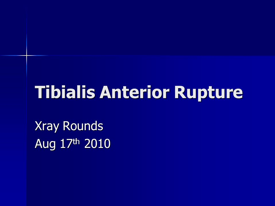 Tibialis Anterior Rupture Xray Rounds Aug 17 th 2010
