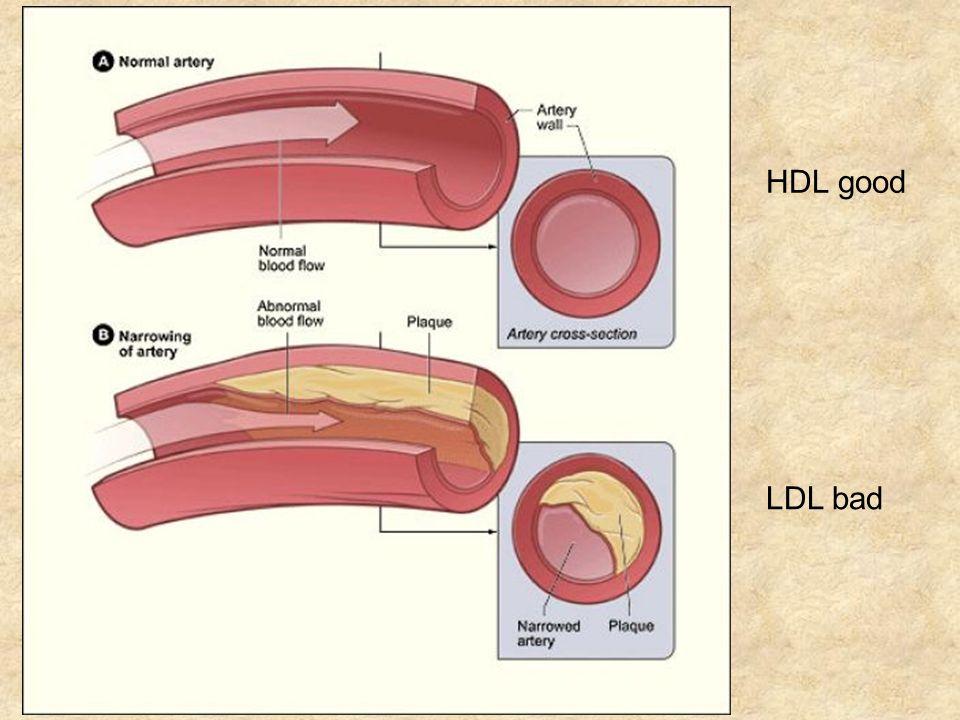 LDL bad HDL good