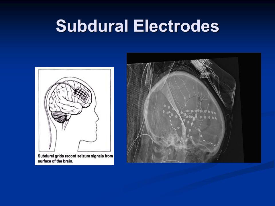 Subdural Electrodes