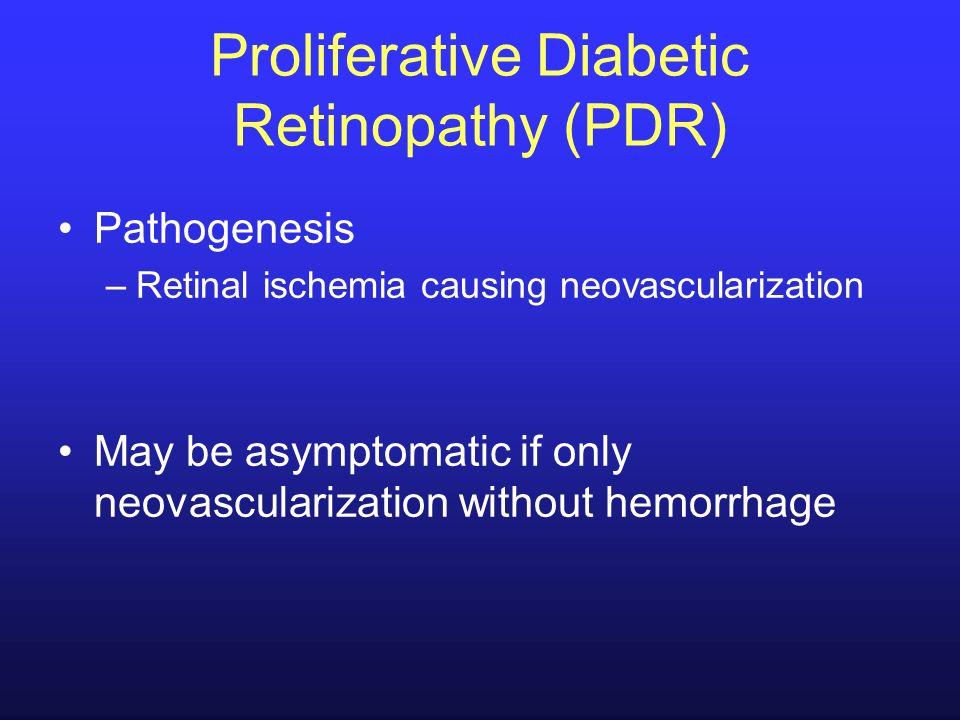 Proliferative Diabetic Retinopathy (PDR) Pathogenesis –Retinal ischemia causing neovascularization May be asymptomatic if only neovascularization with