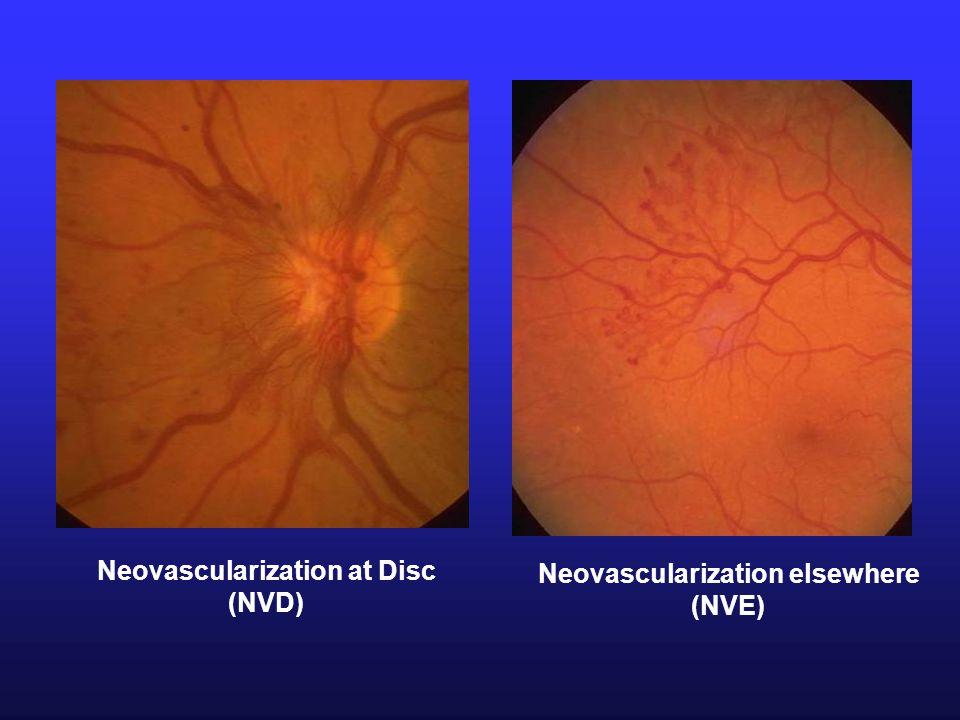 Neovascularization at Disc (NVD) Neovascularization elsewhere (NVE)