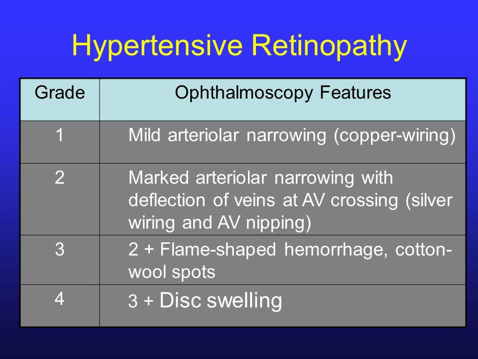 Hypertensive Retinopathy GradeOphthalmoscopy Features 1Mild arteriolar narrowing (copper-wiring) 2Marked arteriolar narrowing with deflection of veins