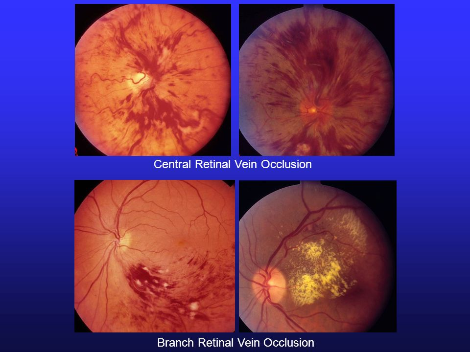 Central Retinal Vein Occlusion Branch Retinal Vein Occlusion