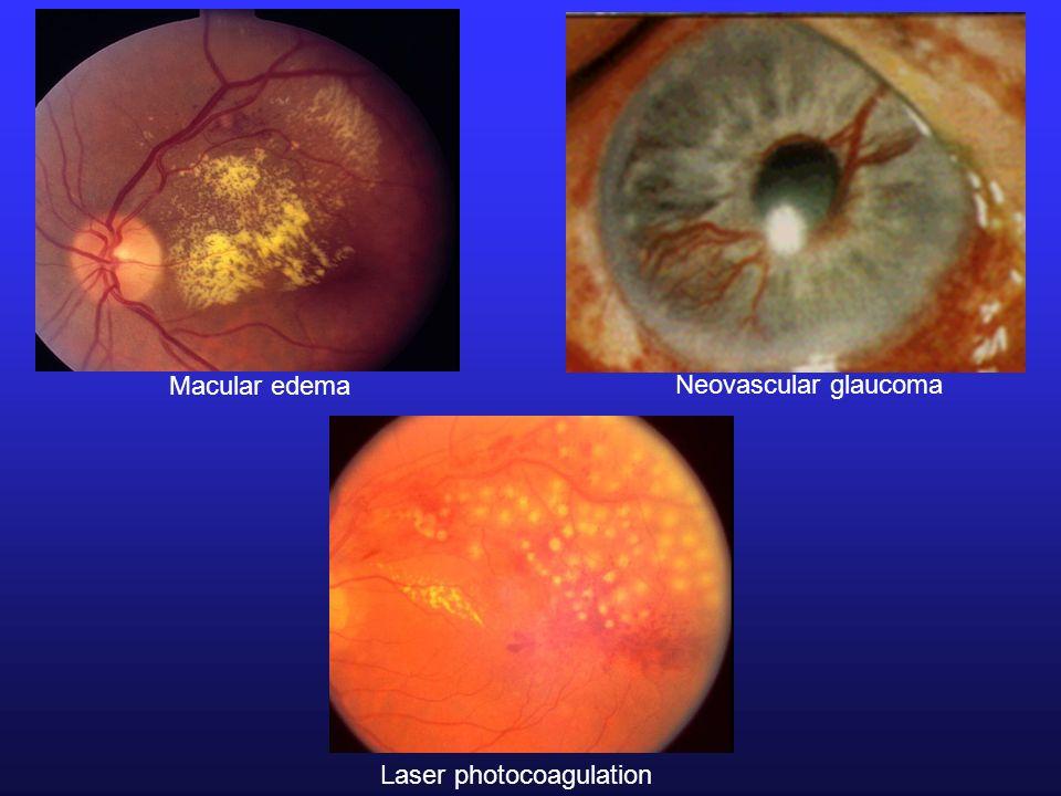 Macular edema Neovascular glaucoma Laser photocoagulation