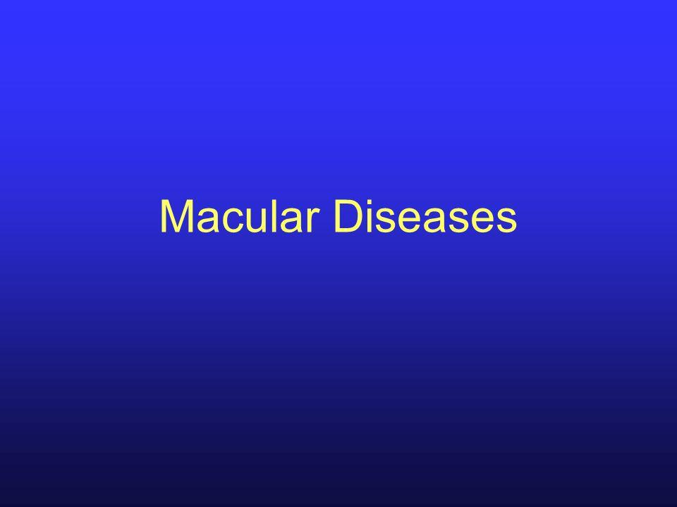 Macular Diseases