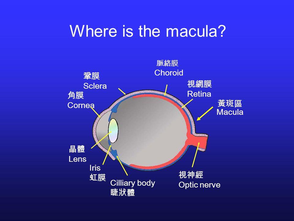 Where is the macula? Retina Choroid Sclera Cornea Lens Iris Cilliary body Optic nerve Macula