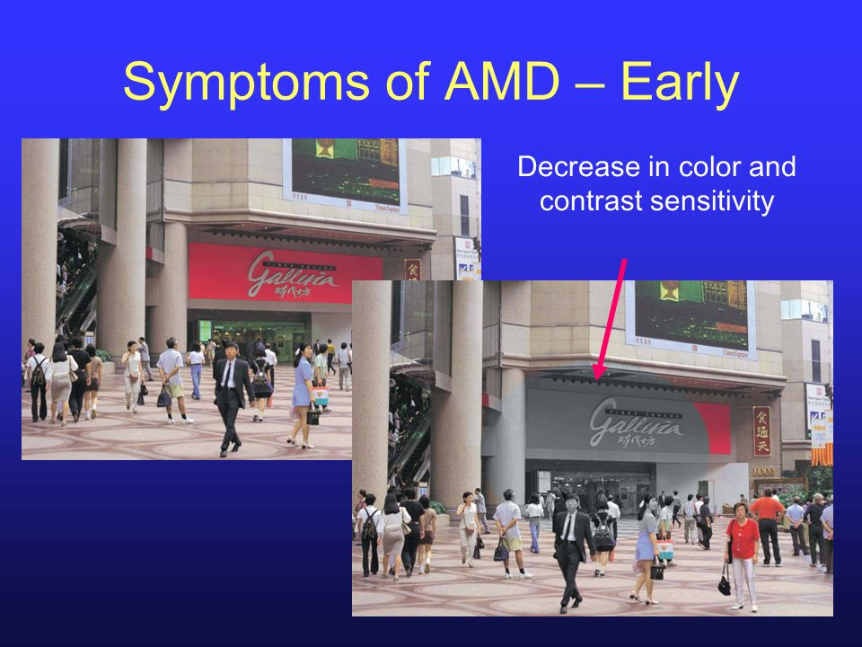 Decrease in color and contrast sensitivity Symptoms of AMD – Early