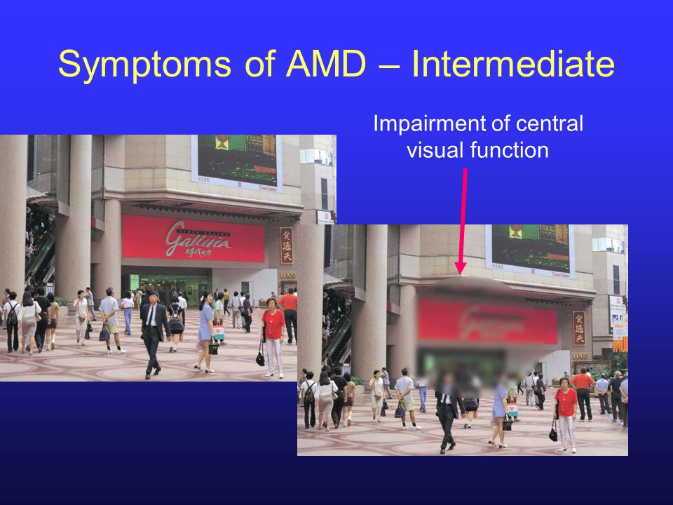 Impairment of central visual function Symptoms of AMD – Intermediate