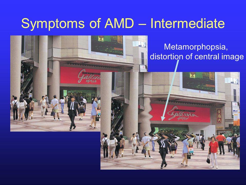 Metamorphopsia, distortion of central image Symptoms of AMD – Intermediate
