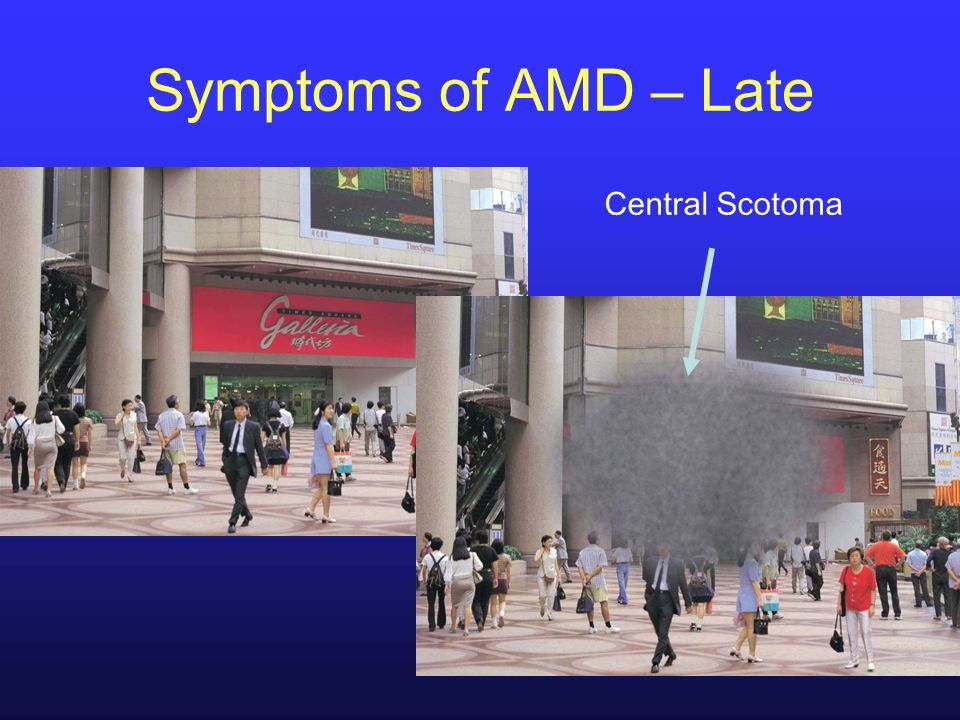 Central Scotoma Symptoms of AMD – Late