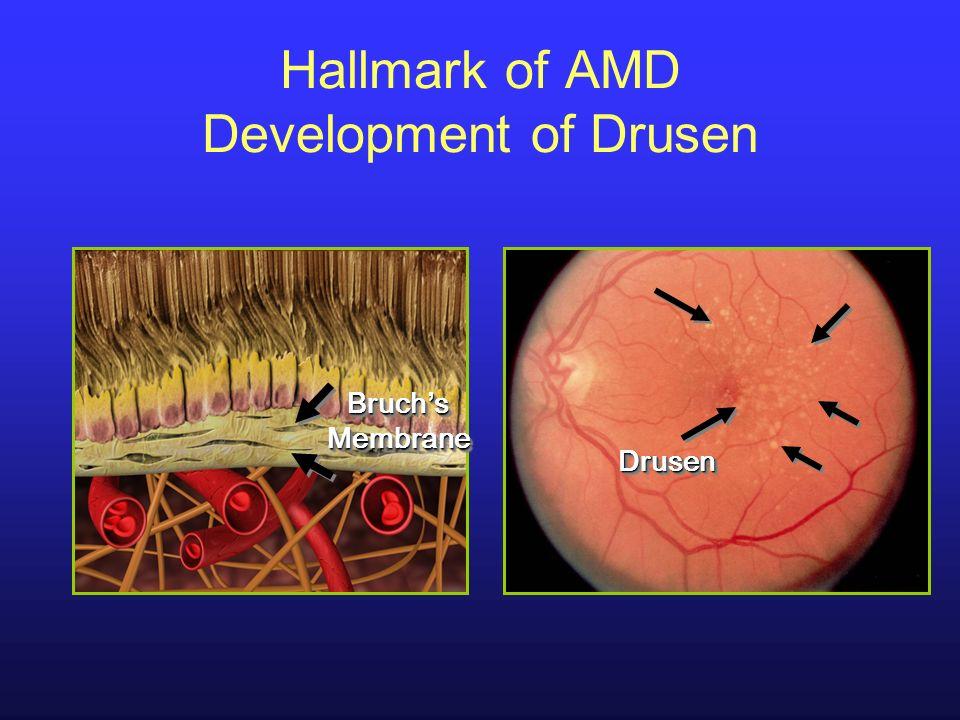 Bruch s Membrane DrusenDrusen Hallmark of AMD Development of Drusen