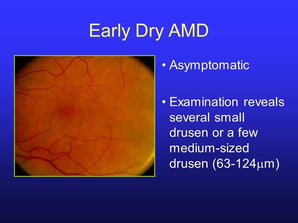 Early Dry AMD Asymptomatic Examination reveals several small drusen or a few medium-sized drusen (63-124 m)