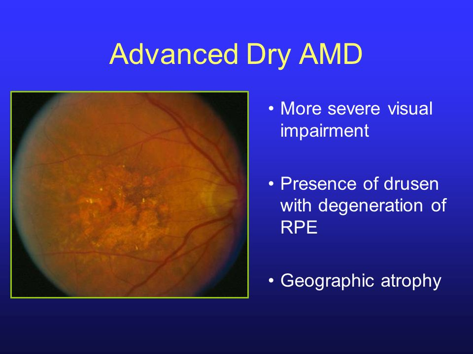 Advanced Dry AMD More severe visual impairment Presence of drusen with degeneration of RPE Geographic atrophy