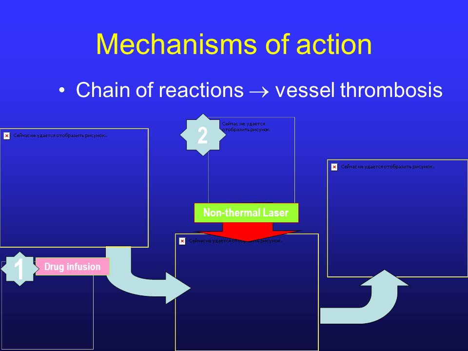 Mechanisms of action Chain of reactions vessel thrombosis Non-thermal Laser Drug infusion 1 2