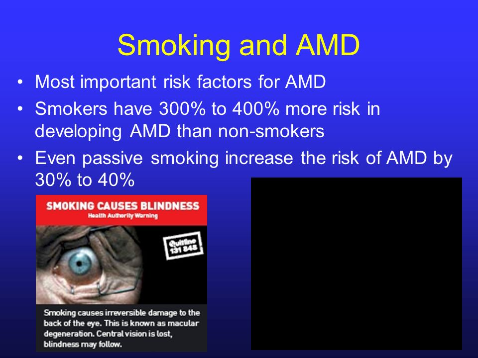 Most important risk factors for AMD Smokers have 300% to 400% more risk in developing AMD than non-smokers Even passive smoking increase the risk of A