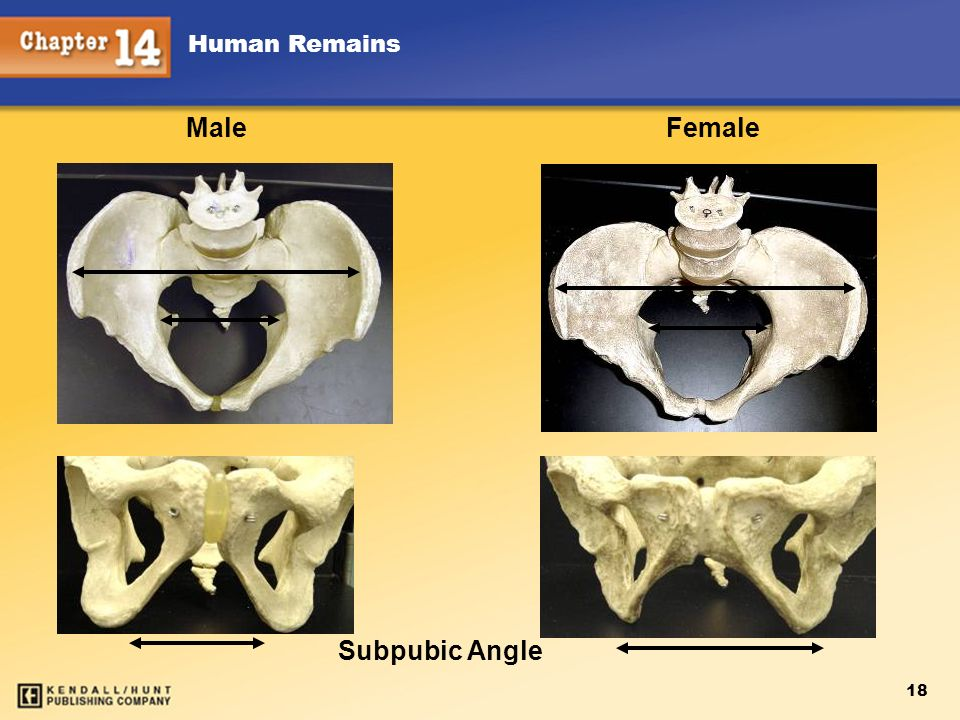 Male Female Subpubic Angle 18 Human Remains