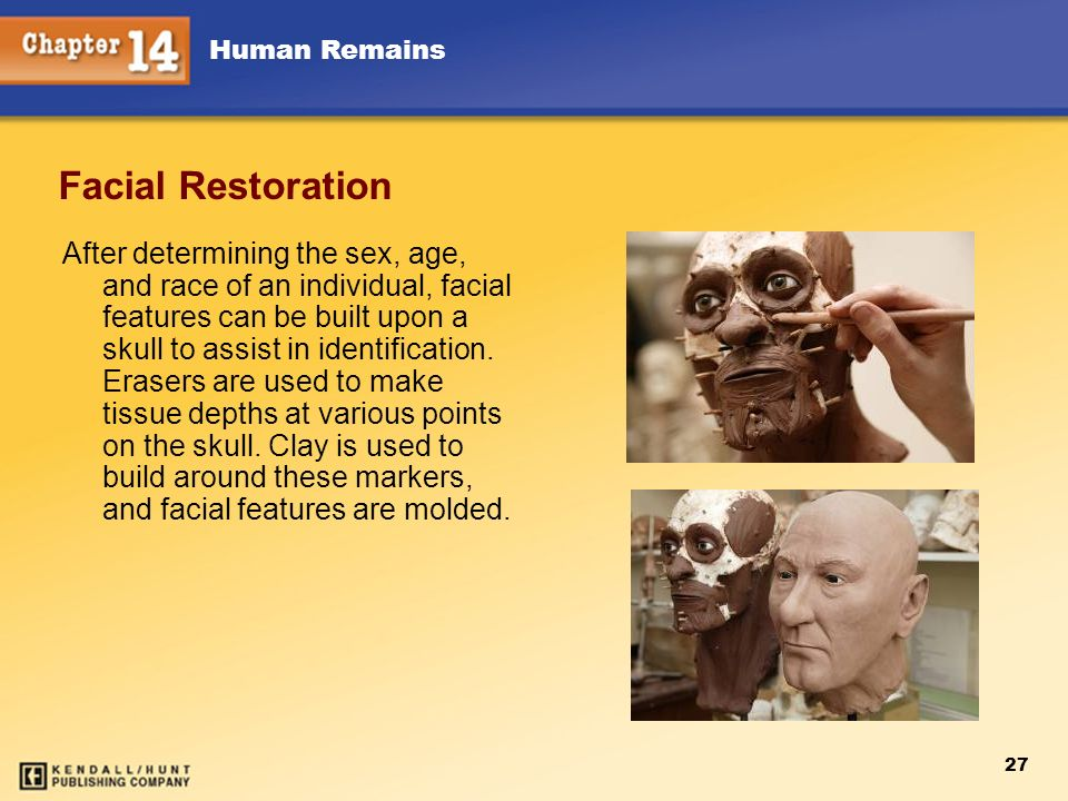 Human Remains 27 Facial Restoration After determining the sex, age, and race of an individual, facial features can be built upon a skull to assist in