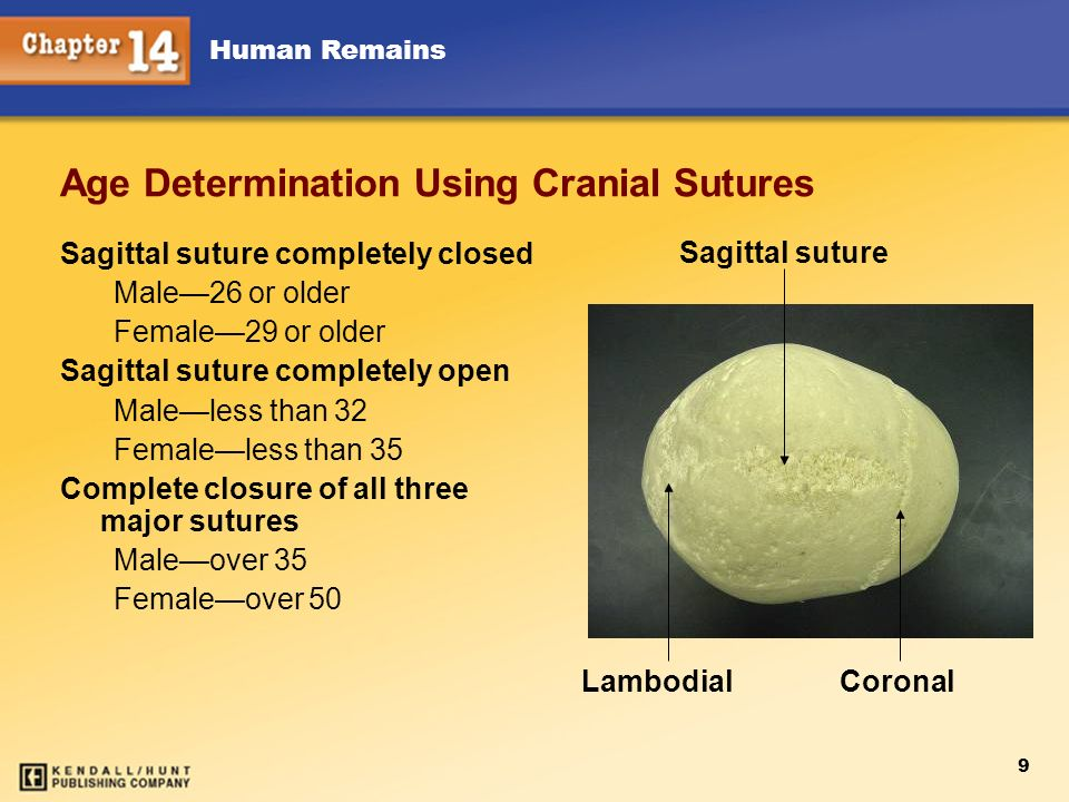 Human Remains 9 Age Determination Using Cranial Sutures Sagittal suture completely closed Male26 or older Female29 or older Sagittal suture completely