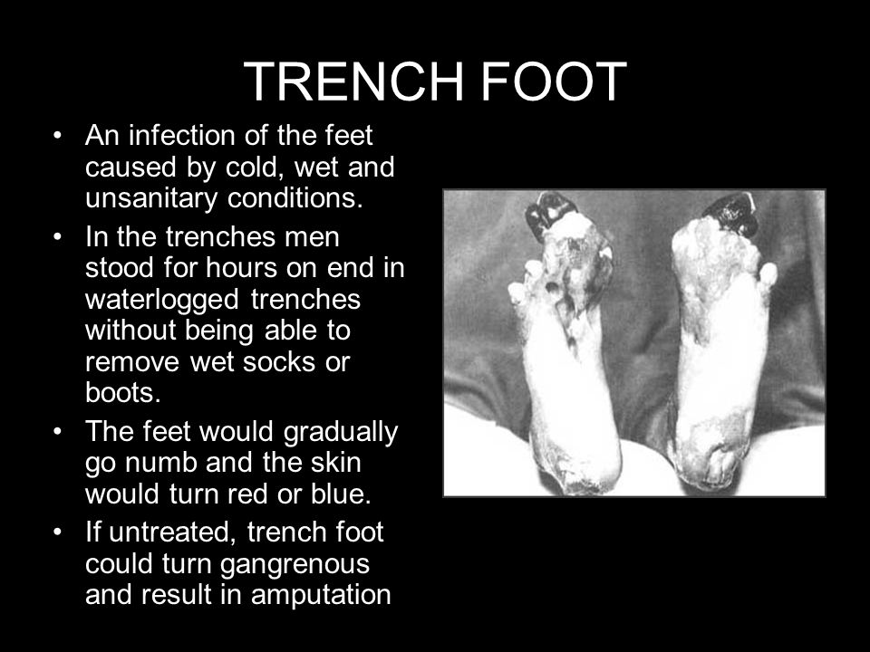 TRENCH FOOT An infection of the feet caused by cold, wet and unsanitary conditions. In the trenches men stood for hours on end in waterlogged trenches