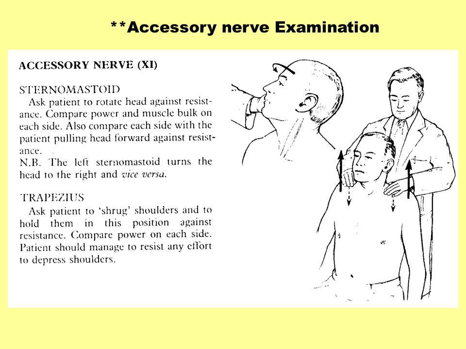 **Accessory nerve Examination