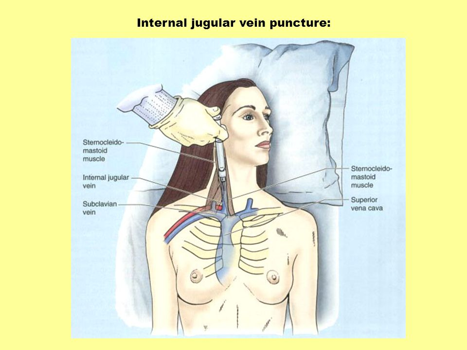 Internal jugular vein puncture:
