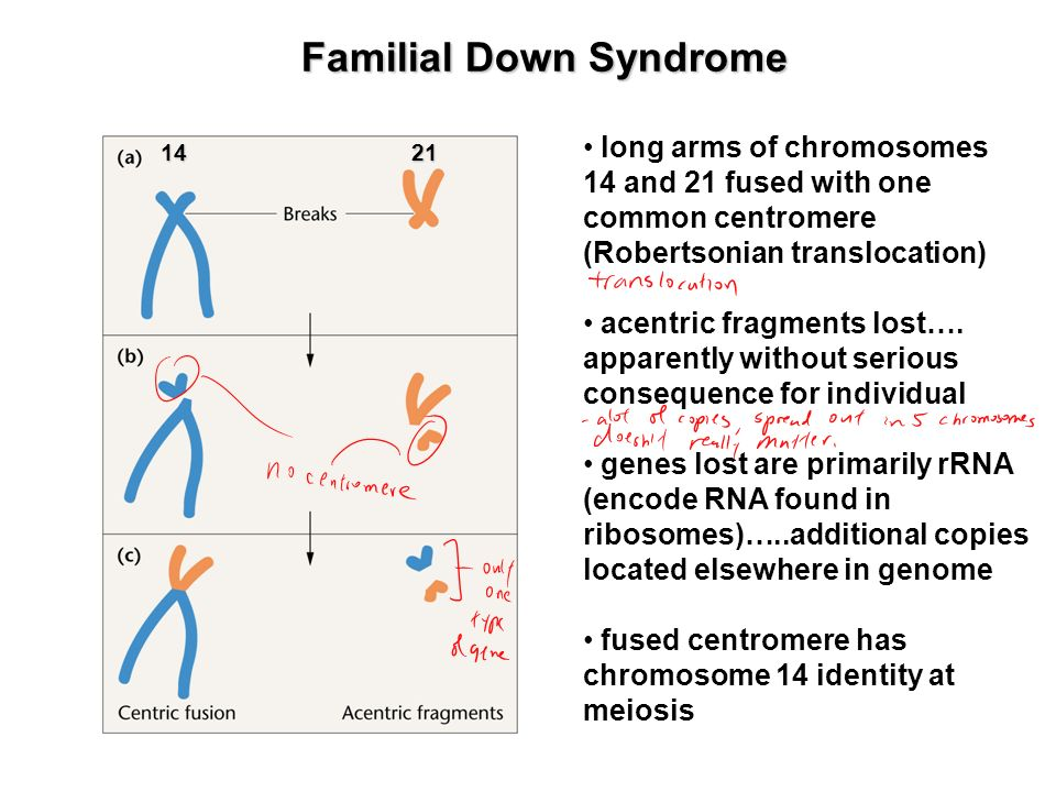 Familial Down Syndrome long arms of chromosomes 14 and 21 fused with one common centromere (Robertsonian translocation) acentric fragments lost…. appa