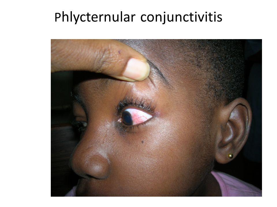 P hlycternular conjunctivitis