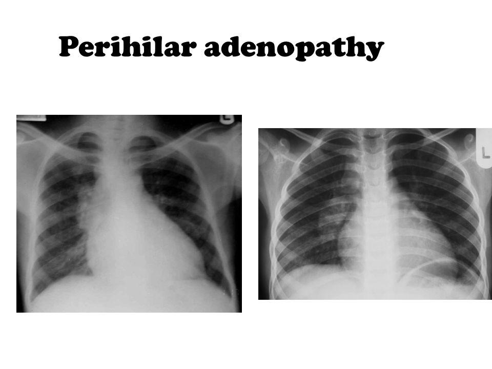 Perihilar adenopathy