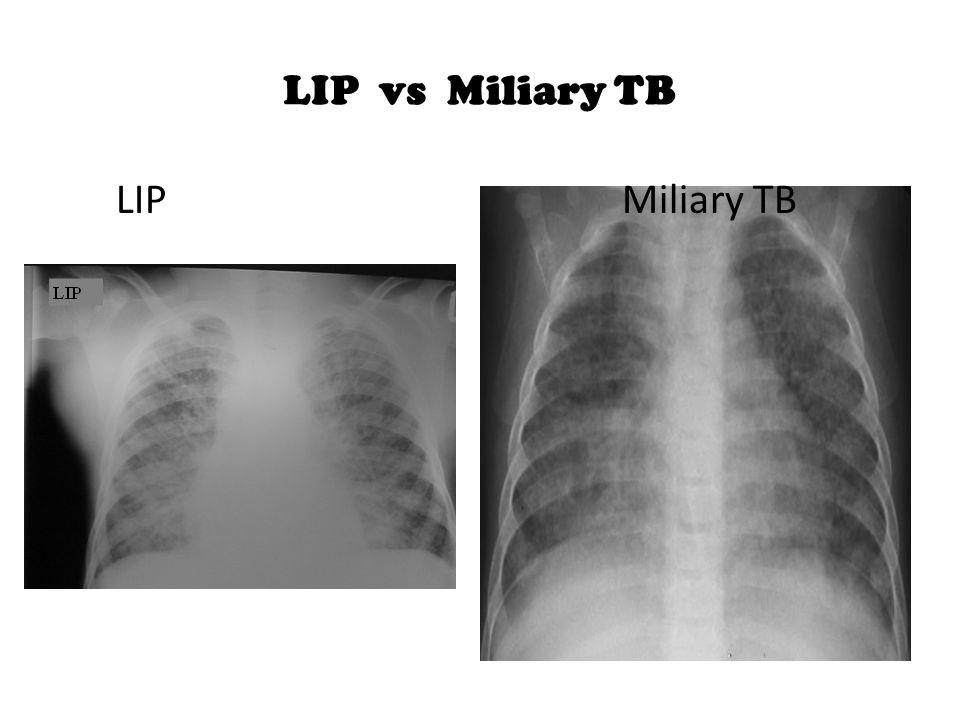 LIP vs Miliary TB LIP Miliary TB