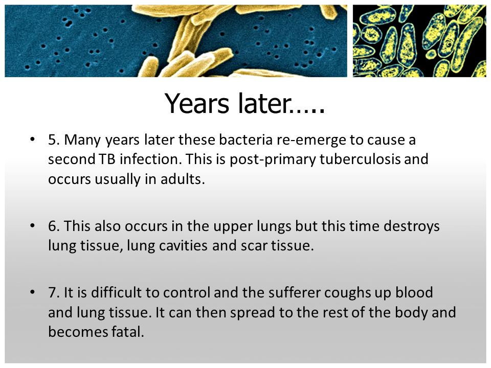 Years later….. 5. Many years later these bacteria re-emerge to cause a second TB infection. This is post-primary tuberculosis and occurs usually in ad