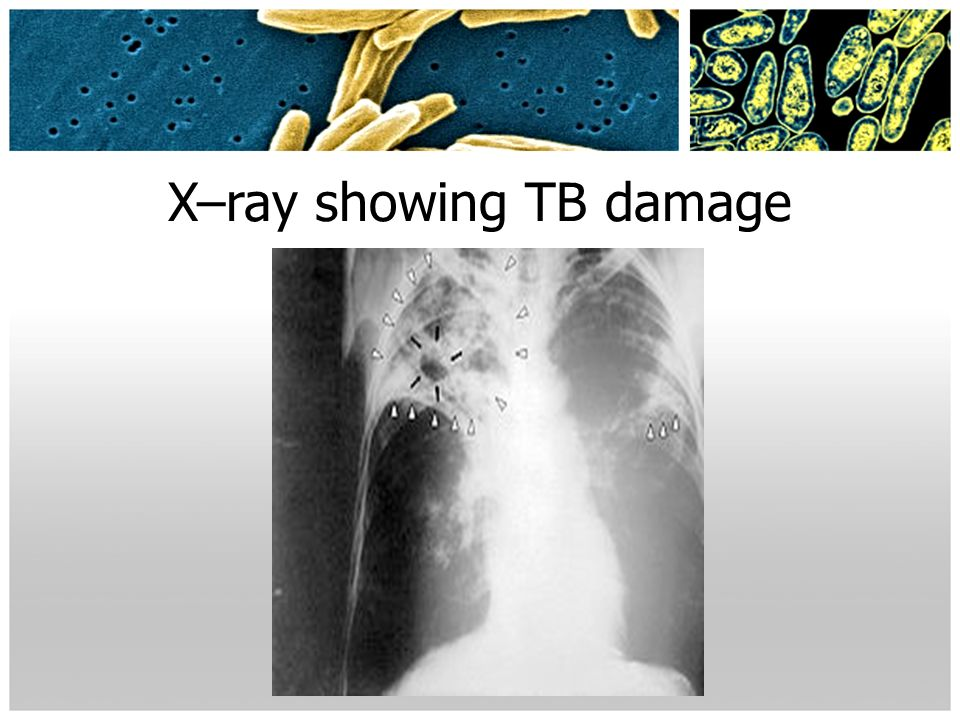X–ray showing TB damage