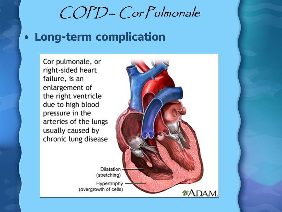 COPD – Cor Pulmonale Long-term complication