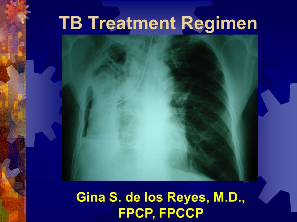 TB Treatment Regimen Gina S. de los Reyes, M.D., FPCP, FPCCP