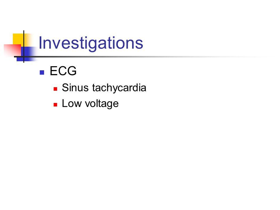 Investigations ECG Sinus tachycardia Low voltage