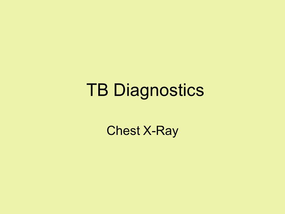 TB Diagnostics Chest X-Ray