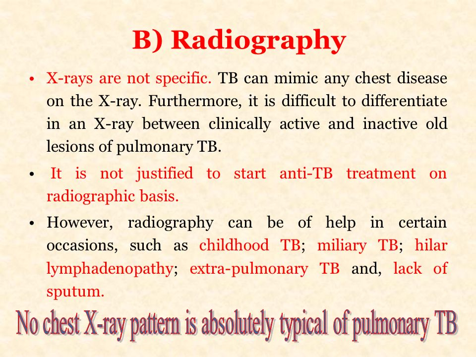 B) Radiography X-rays are not specific. TB can mimic any chest disease on the X-ray. Furthermore, it is difficult to differentiate in an X-ray between