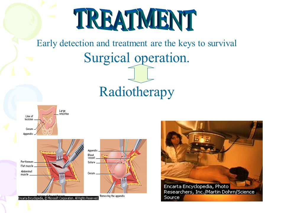 Early detection and treatment are the keys to survival Surgical operation. Radiotherapy