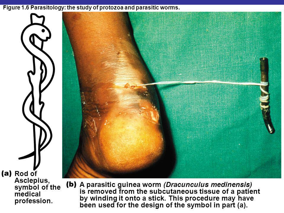 Rod of Asclepius, symbol of the medical profession. A parasitic guinea worm (Dracunculus medinensis) is removed from the subcutaneous tissue of a pati